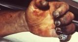 Σοκ στις ΗΠΑ: Άνδρας πέθανε από πανώλη